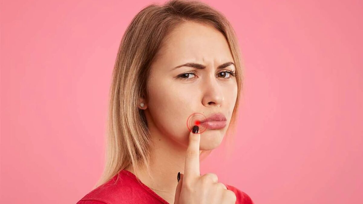 Herpes labiale, quali le cause e quali i rimedi